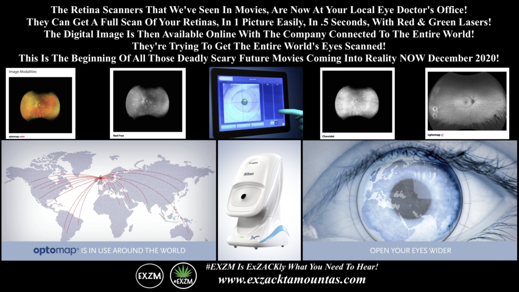 Optos Daytona Eye Retina Scanners EXZM December 13th 2020