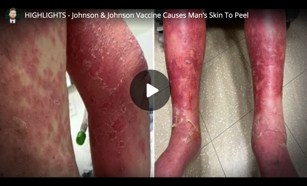 HIGHLIGHTS Johnson and Johnson Vaccine Causes Mans Skin To Peel EXZM Zack Mount March 30th 2021
