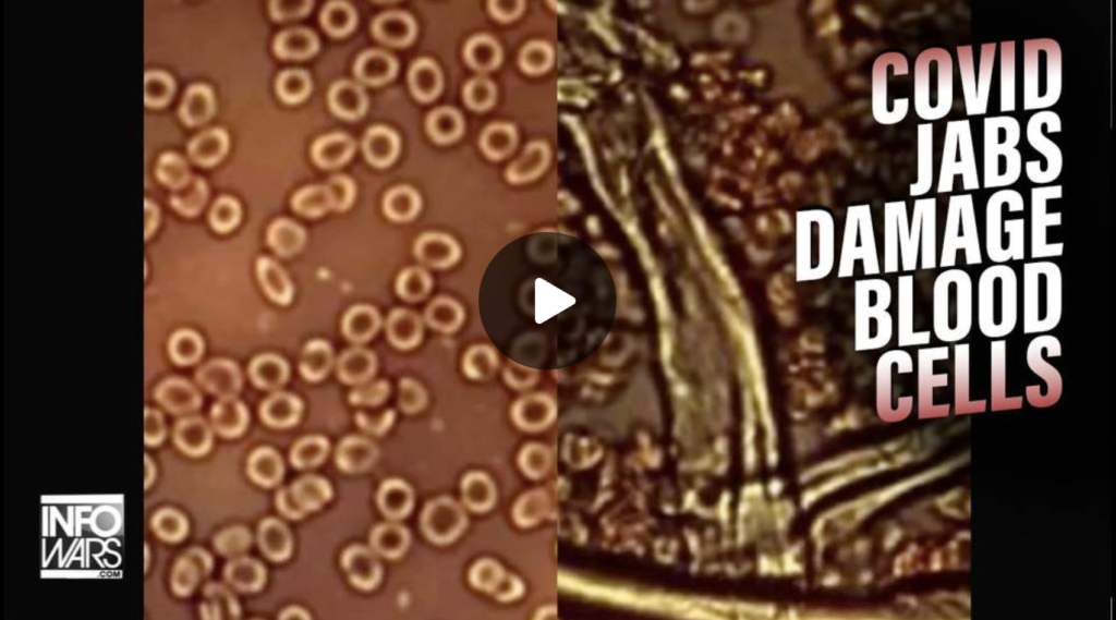 New Evidence Is Proof COVID Jabs Damage Blood Cells EXZM Zack Mount July 23rd 2021
