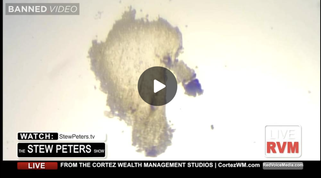Dr Shows Horrifying Images Of Magnified COVID Vaccines EXZM Zack Mount October 1st 2021